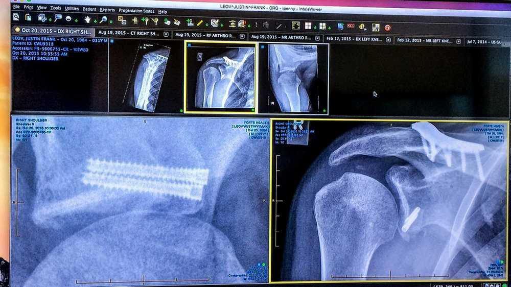 JUSTIN LEOV radiografia