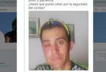 El picotazo de una abeja deforma el rostro del ciclista sergio samitier