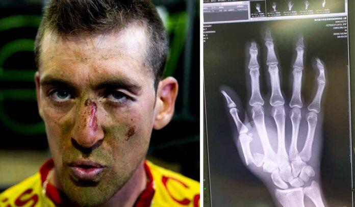 pablo rodríguez se fractura un dedo