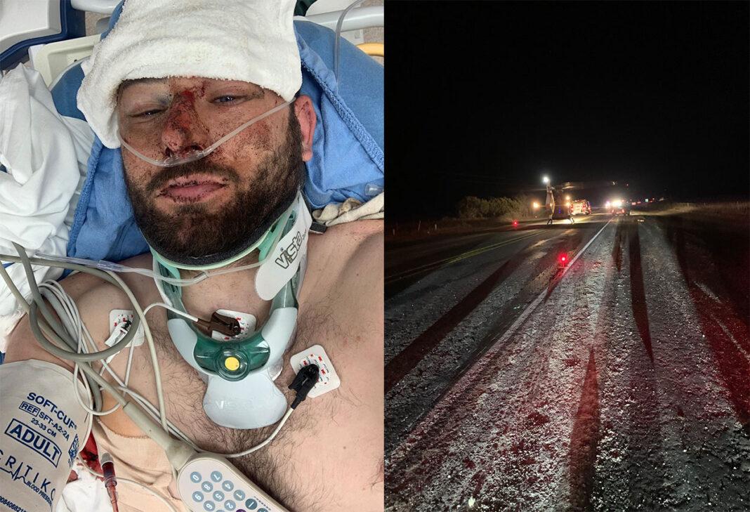Vídeo-Fractura-de-cráneo-pelvis-tobillo-costillas-pulmón-El-atropello-del-ciclista-que-daba-la-vuelta-al-mundo-ciclista-escocés-Josh-Quigley