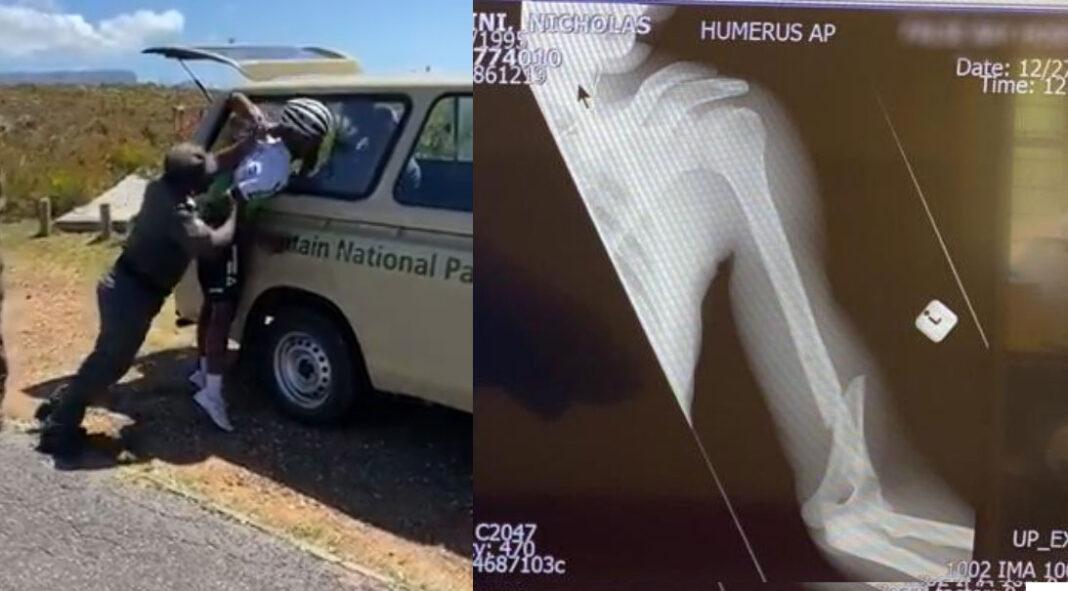 Vídeo: Le parten un brazo al ciclista profesional Nicholas Dlamini al ser detenido en un Parque Nacional