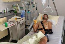 Fumic herido grave tras una caída mientras entrenaba en bicicleta