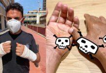 Purito muestra las cicatrices de sus manos pero se lleva una desilusión al ver lo de Marc Márquez...