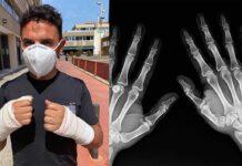 Purito tendrá que operarse de las dos manos tras la caída en bicicleta de montaña