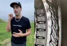 Vídeo: Ángel Suárez sufre varias fracturas en su espalda tras su caída en bici