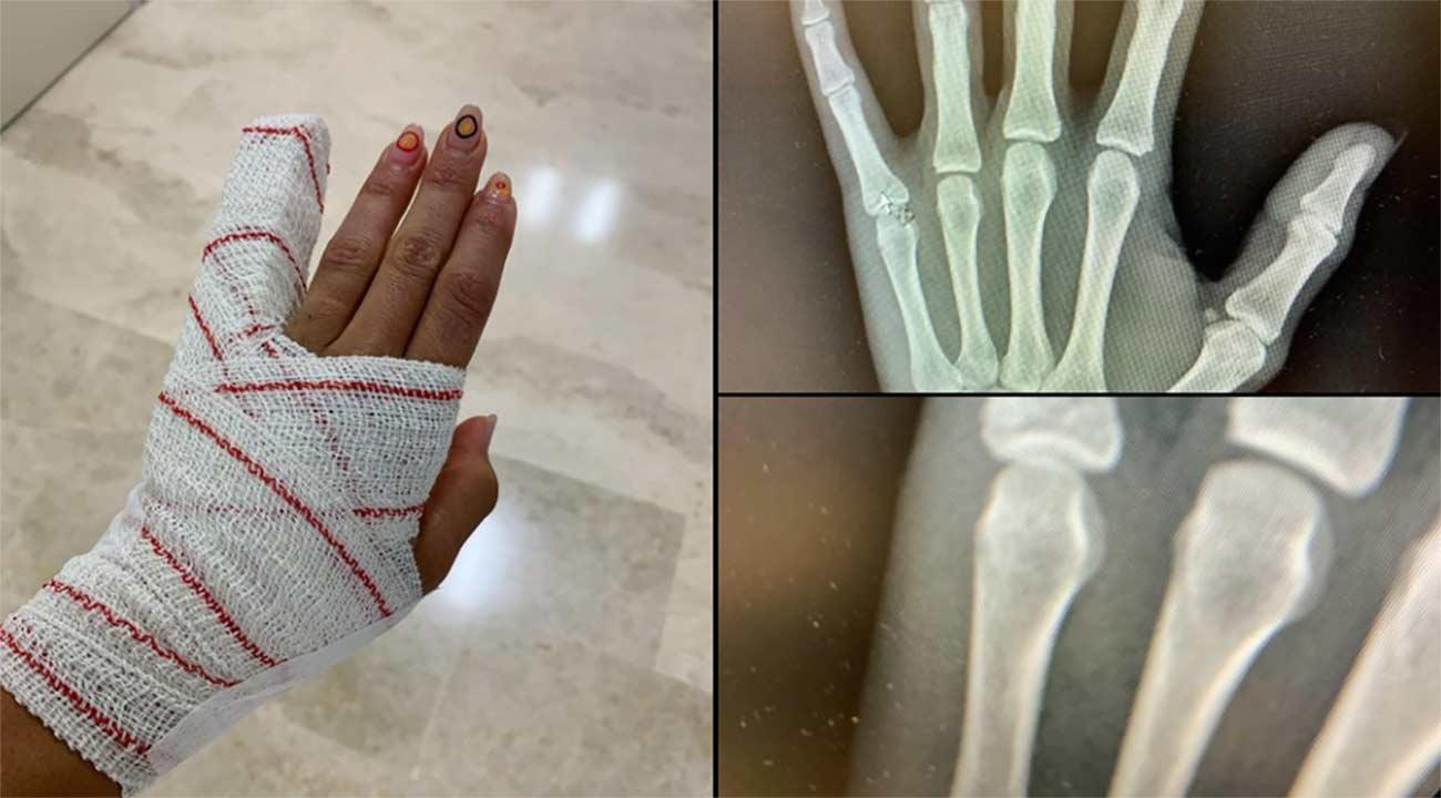 La ciclista Roció García compitió en Tokio con dos huesos rotos